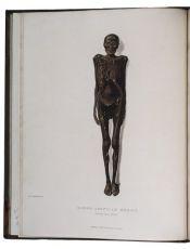 The historic cornerstone of the study of mummification in English